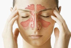 pengertian penyakit sinusitis
