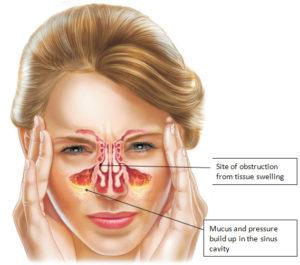 cara mengobati penyakit sinusitis