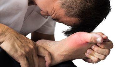 gejala dan penyebab asam urat