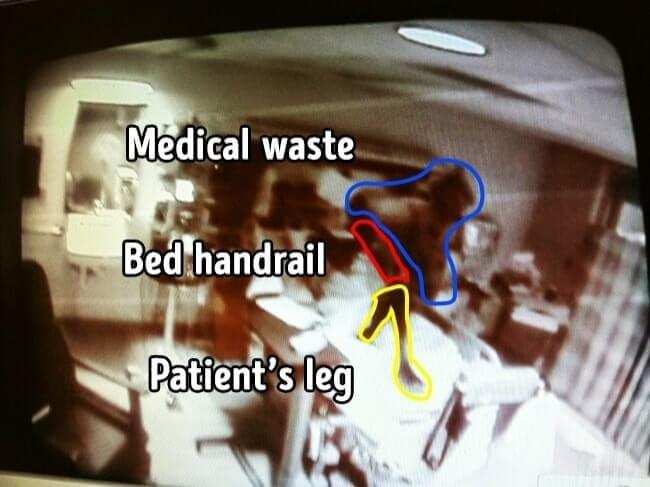 penampakan di atas tempat tidur pasien